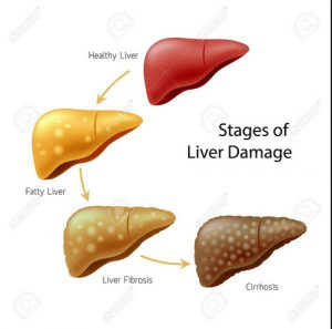 stages of liver