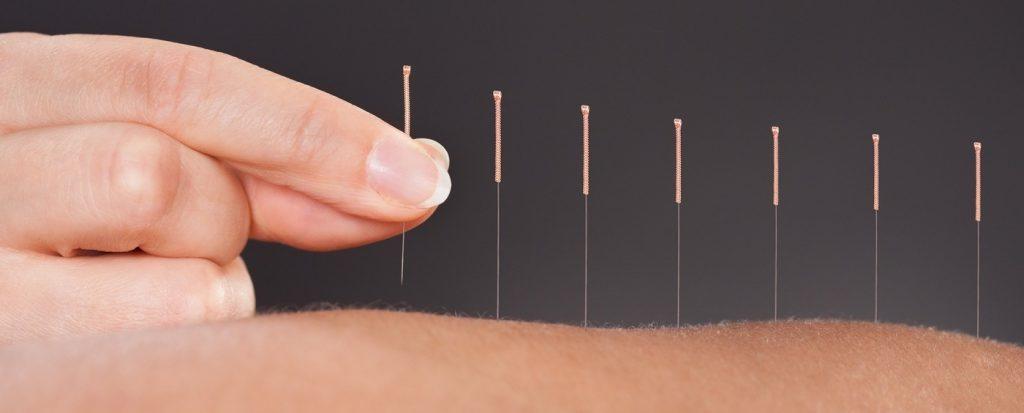 Acupuncture in Chandigarh